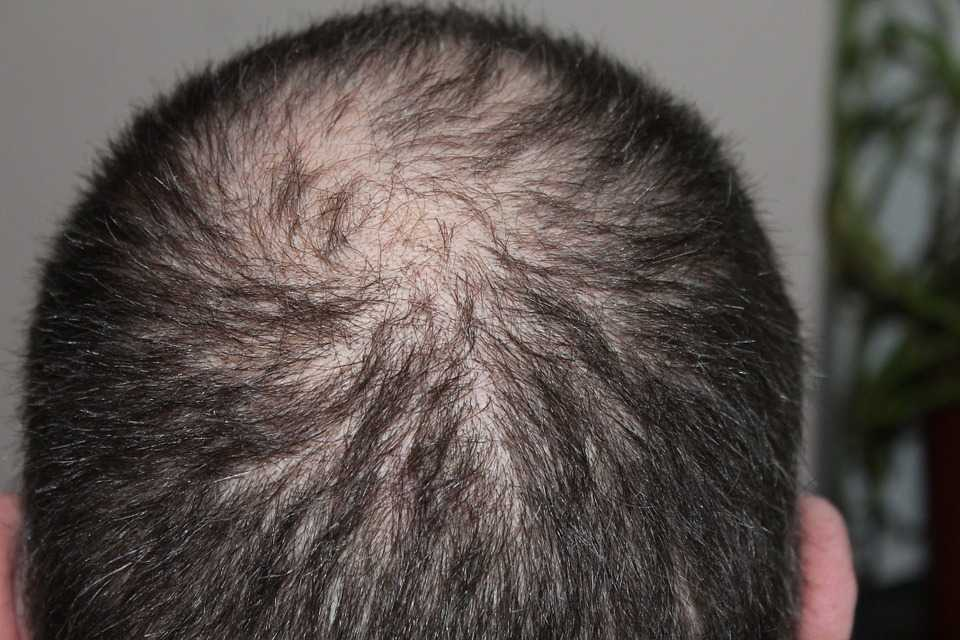 Hair loss causes; What You Need to Know